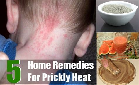 prickly heat home remedies treatments and cures search