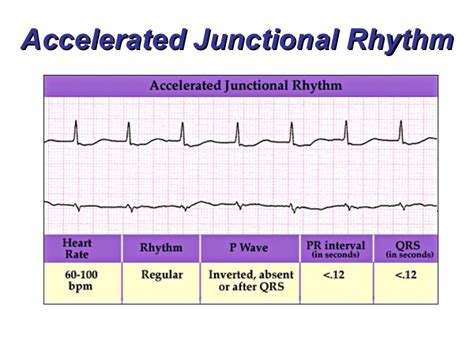 Accelerated Mba Vs Regular by Junctional Rhythms Bmh Tele
