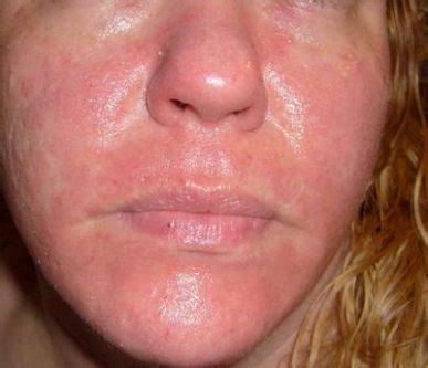 itchy rash on face and neck 10 ways to get rid of a rash on your face fast