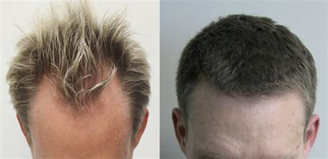 fue hair transplant reviews image gallery hairline transplant