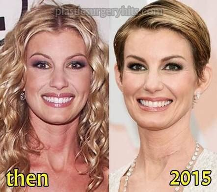 jessica robertson surgery faith hill plastic surgery botox injection in plastic