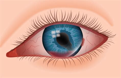 eye injury eye infections and injuries