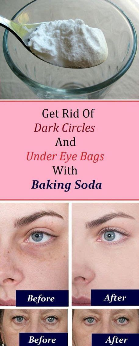 Get Rid Of Eye Bags And Circles Podcast by 537 Best Images About Health Aids On