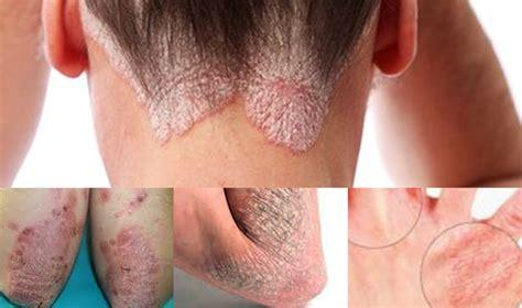 Penyakit Kulit Parasit Pada tanda tanda dan gejala penyakit eksim atau dermatitis
