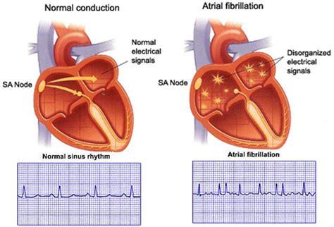 atrial fibrillation diagram atrial fibrilation