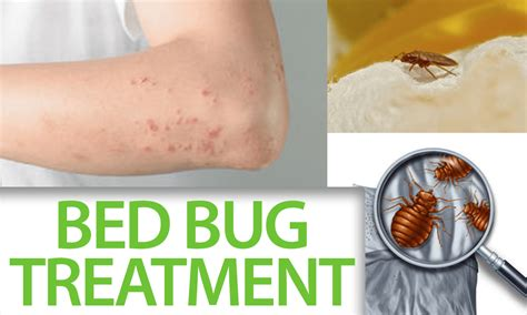 bed bug treatments that work how to arm yourself before a bed bug treatment in your