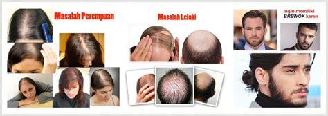 Kirkland Minoxidil 5 Penumbuh Rambut Brewok Seperti R 1 kirkland minoxidil original solusi penumbuh rambut brewok