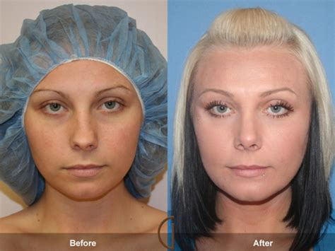 photo gallery before and after cosmetic surgeon in the before after nose job gallery orange county