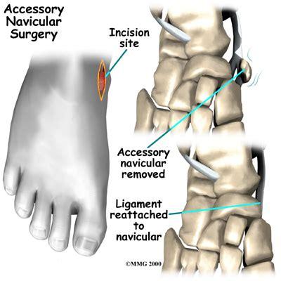 kidner procedure (accessory navicular surgery) – sneaker