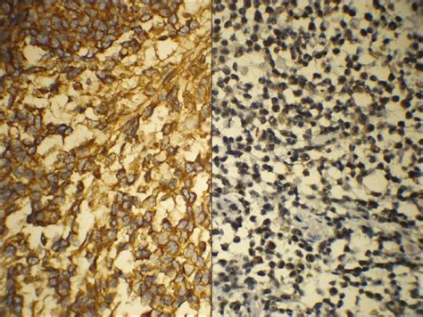 Gliosarcoma Pathology Outlines by Pathology Outlines Gliosarcoma
