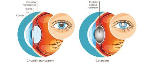 cabinet ophtalmologie des flandres cataracte cabinet d ophtalmologie des flandres