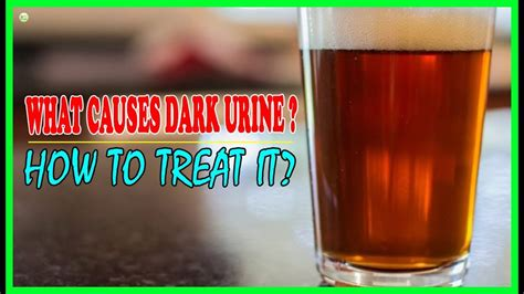 what causes urine and how to treat it best home