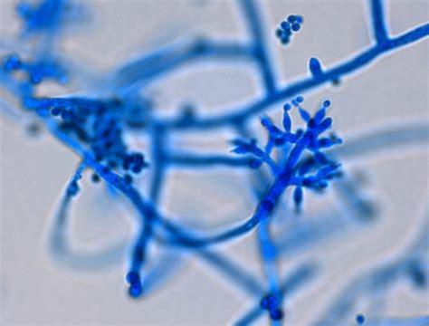 makalah mekanisme jamur trichoderma sp sebagai agen