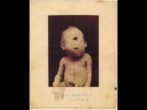 imagenes medicas perturbadoras im 225 genes m 233 dicas perturbadoras de la historia de la humanidad