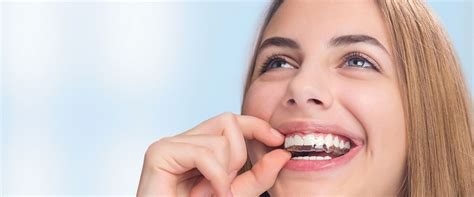 invisalign vs traditional braces benefits of invisalign in denton vs traditional braces
