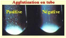 widal wright test le diagnostic bacteriologique d une infection bacterienne ii