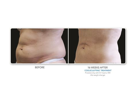 coolsculpting reduction connecticut