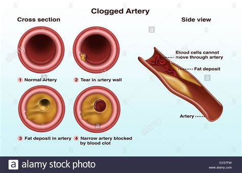 cross section through an artery with a build up of plaque