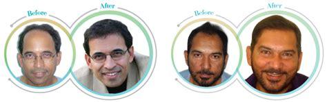 harsha bhogle hair transplant harsha bhogle hair transplant hairstylegalleries com