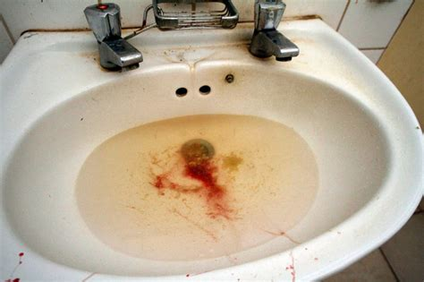 puking blood term for blood in vomit foods to thin blood