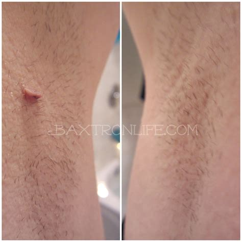 tria beauty laser before and after pictures baxtron life tria beauty hair removal laser discount