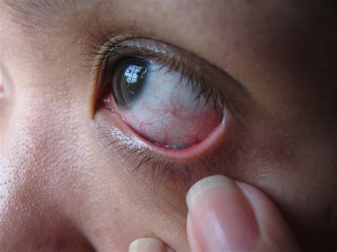 eye infection deadly eye makeup and other aids stop using