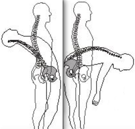 Flexi On spine flexion extension 2 b reddy org