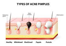 latest acne guidelines maine laser skin care