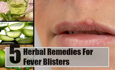 fever blisters herbal remedies treatments cure