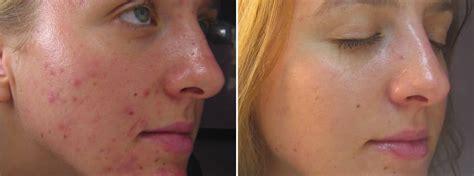 8 light pca chemical peels obagi skin care yelp