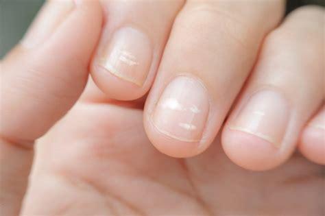 Nägel Lackieren Nagelhaut by Die Gr 246 223 Ten Irrt 252 Mer Helle Flecken Auf Den Fingern 228 Geln