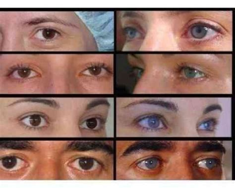 eye color surgery before and after eye color surgery before and after places to visit