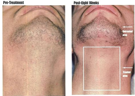 hair removal permanent laser hair removal system