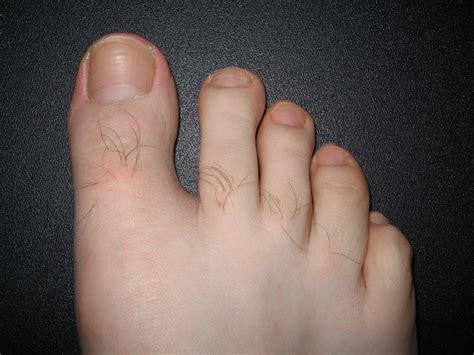 Pictures Of Toenails