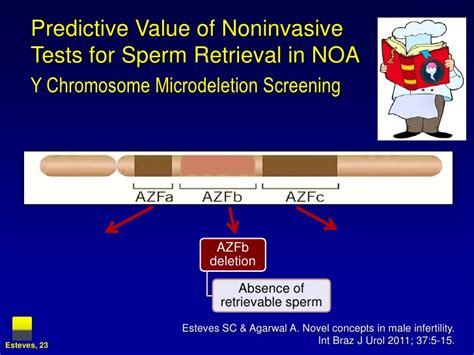 Sperm Retrieval Techniques - Looking for a Needle in the ... Y Chromosome Microdeletion