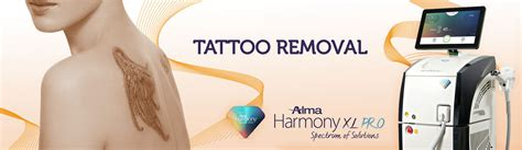 advanced tattoo removal harmony xl removal queensway michael