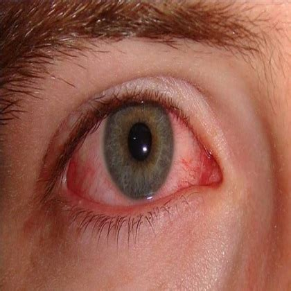 eye infection laser surgery laser surgery home remedies cures home