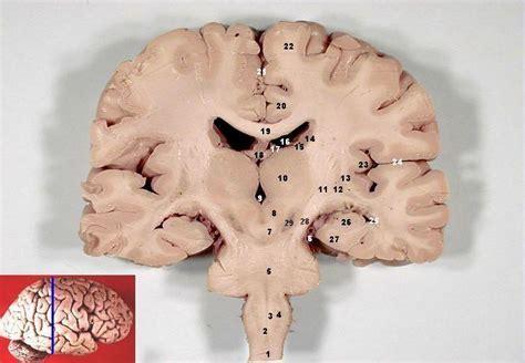 coronal section of human brain file human brain frontal coronal section description 2