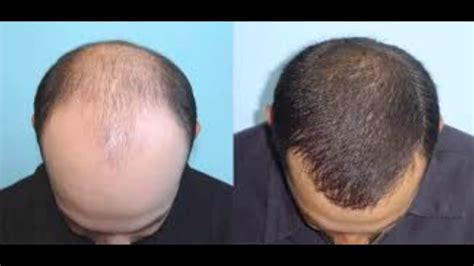 before snd after picture of hair growth in eonen just natural grow new hair treatment before and after just