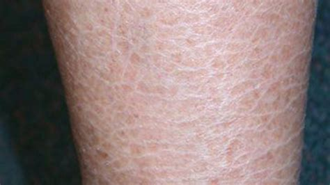 ichthyosis images ichthyosis vulgaris pictures photos
