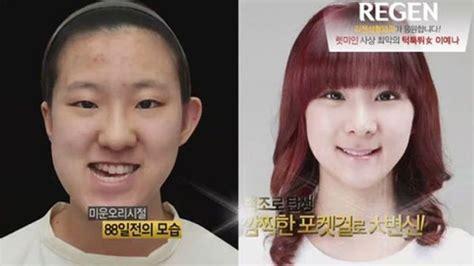 写真で見る日本と韓国の女の子たちの整形 中国網 日本語