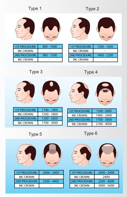 hair transplant cost 2014 how much does hair transplant cost in australia om hair