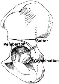 (ii) Pelvic osteotomy for the management of hip