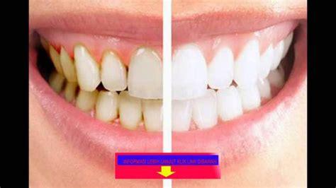 Membersihkan Plak Gigi cara membersihkan plak gigi tanpa harus ke dokter vebma
