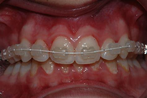 apparecchi mobili denti apparecchi