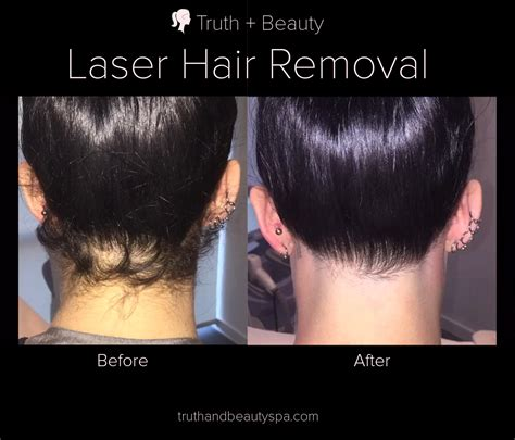 forehead hair removal for men laser hair reduction in new york truth beauty spa