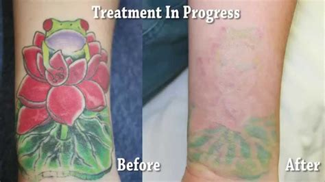 tattoo removal in orange county orange county removal results smcs