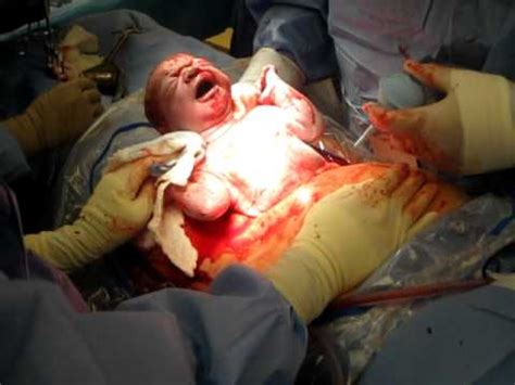 video of c section birth graphic patrick owen s birth via c section youtube