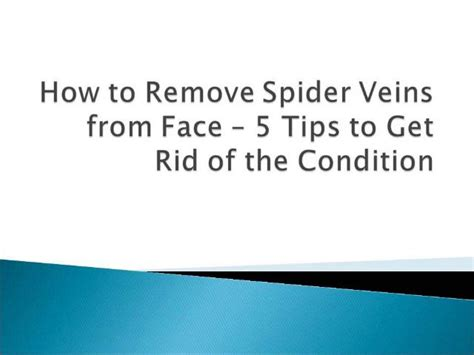 Five Tips On How To Get Rid Of Eye Circles And Puffiness by How To Remove Spider Veins From 5 Tips To Get Rid