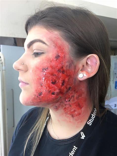 severe burn   face   severe burns makeup face